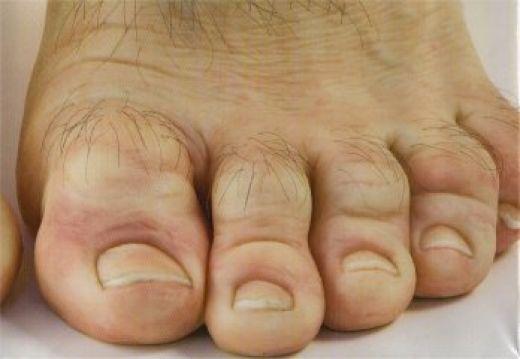 man toes Gallery